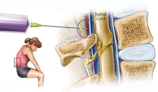 epiduralna -anestezija