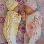 EKSKLUZIVNO ZA DEVET MESECI :Rodjeni blizanci ali beba Dunjica je fenomen