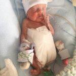 Kada se rodio, stao je u majčin dlan: Zbog jedne stvari ga zovu ČUDESNA BEBA