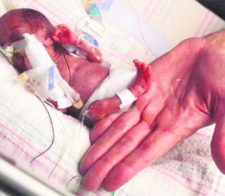 ČUDESNA PRIČA O SRPSKIM PALČIĆIMA Najmanja beba među njima rođena je sa samo 350 grama, izborili su se za život i ZASLUŽUJU NAŠE DIVLJENJE